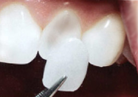 Broward dentist cosmetic veneers