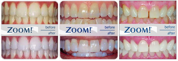 Professional Teeth Whitening Pompano Beach With Zoom